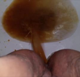 liquid poop